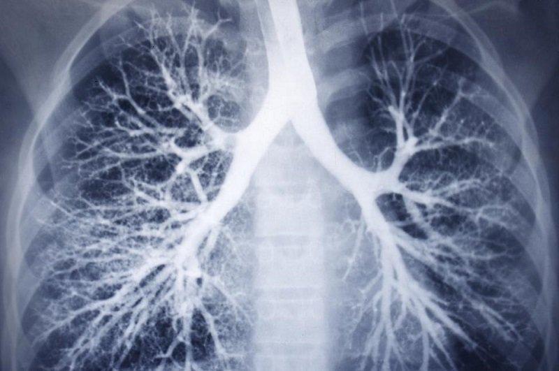 روش جدید درمان سرطان ریه توسط محققان دانشگاه کلرادو