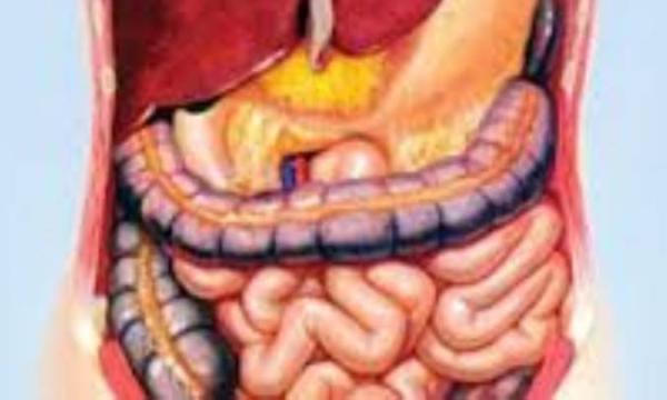 سرطان روده چیست؟